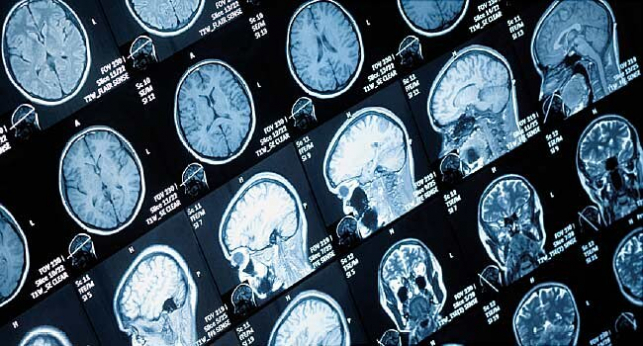 Firms Race to Find New Ways to Scan Brain Health - WebMD